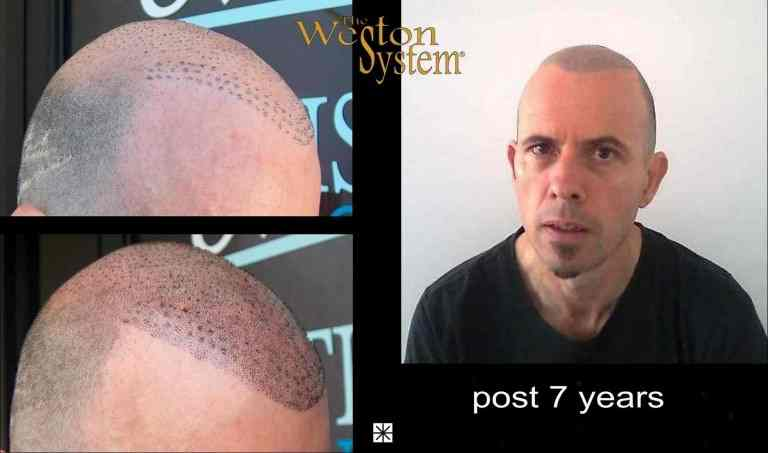 Scalp Micropigmentation Hair Transplant