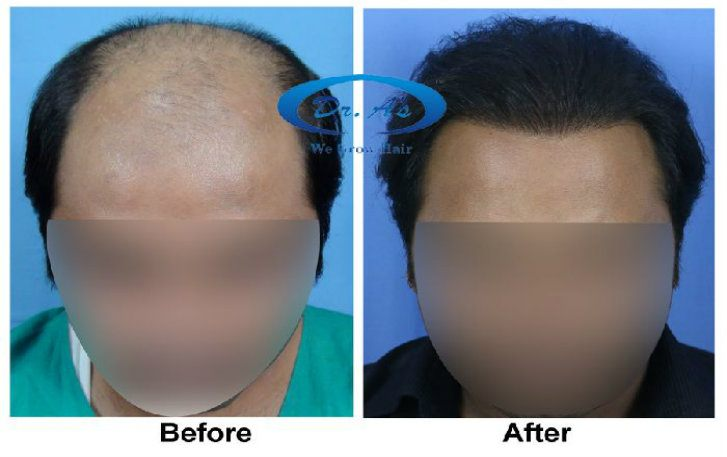 a-dr-arvind-poswal-hair-transplant-tourism-results-6