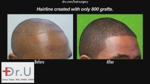 African Hair Transplant
