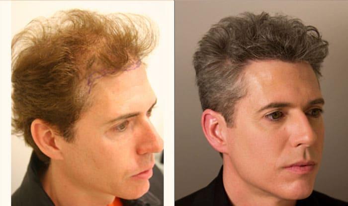 Alviarmai Hair Transplant 3