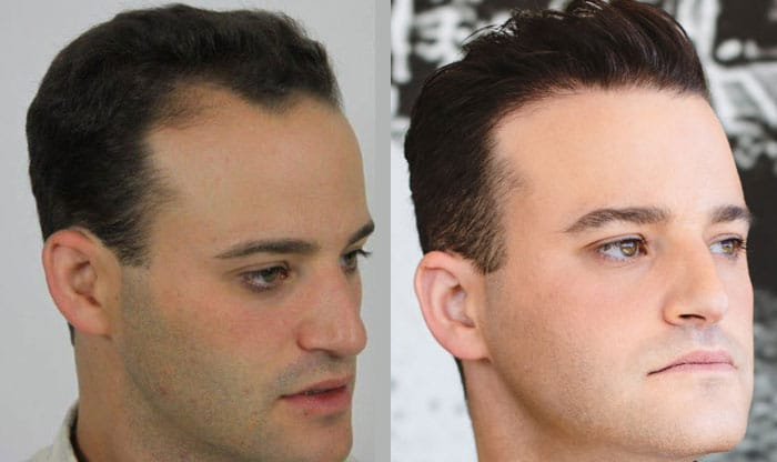 Alviarmai Hair Transplant3a