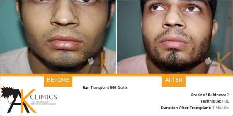 beard-transplant-result-2
