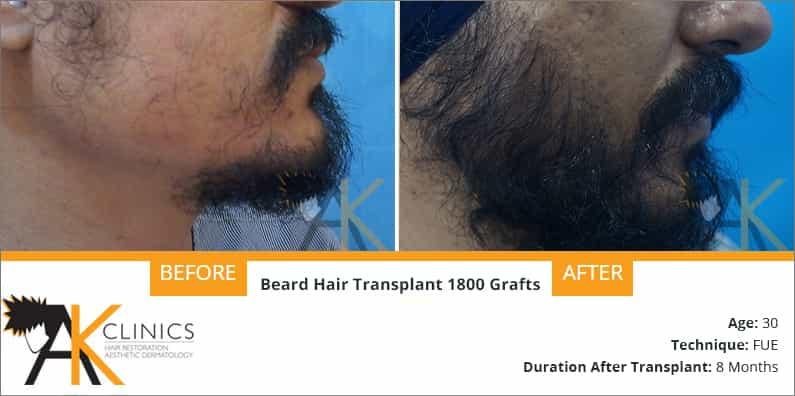 beard-transplant-result-4