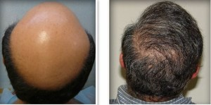 Body Hair Transplant Doctor Training