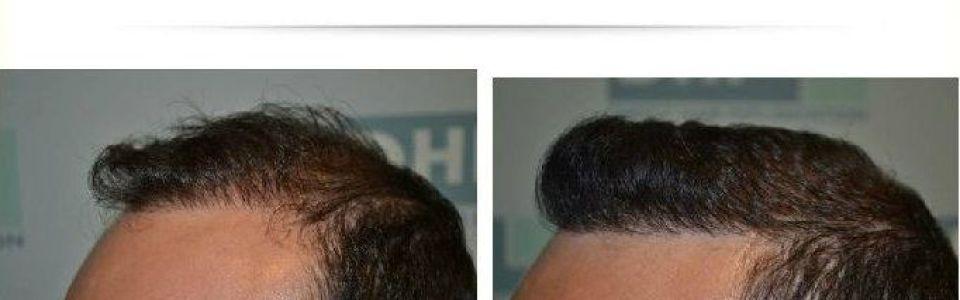 dhi hair transplant reviews