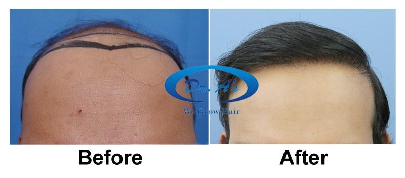 Dr Arvind Hair Transplant Result 2