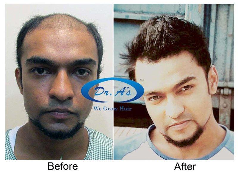 Dr Arvind Hair Transplant Result 7