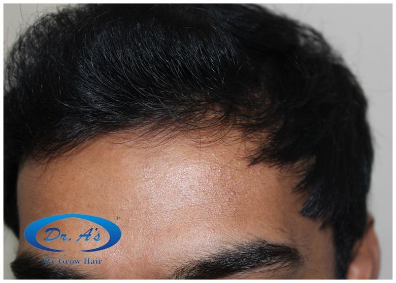 Dr Arvind Hair Transplant Result 9