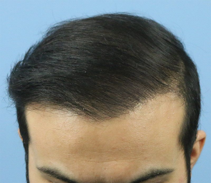 Dr Arvind Poswal Hair Transplant India 16