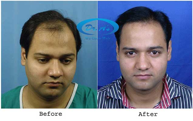 Dr Arvind Poswal Hair Transplant India 17