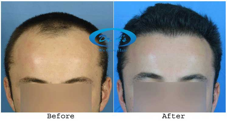 Dr Arvind Poswal Hair Transplant India 18