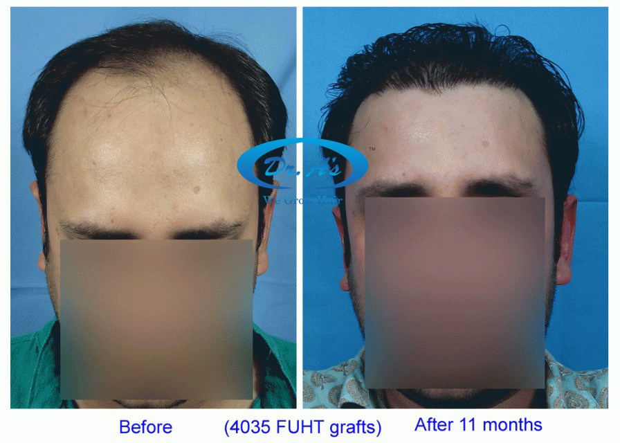 Dr Arvind Poswal Hair Transplant India 33