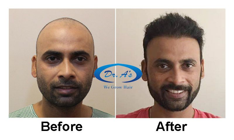 Dr Arvind Poswal Hair Transplant India 34