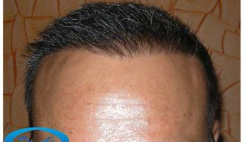 Dr Arvind Poswal Hair Transplant India 55