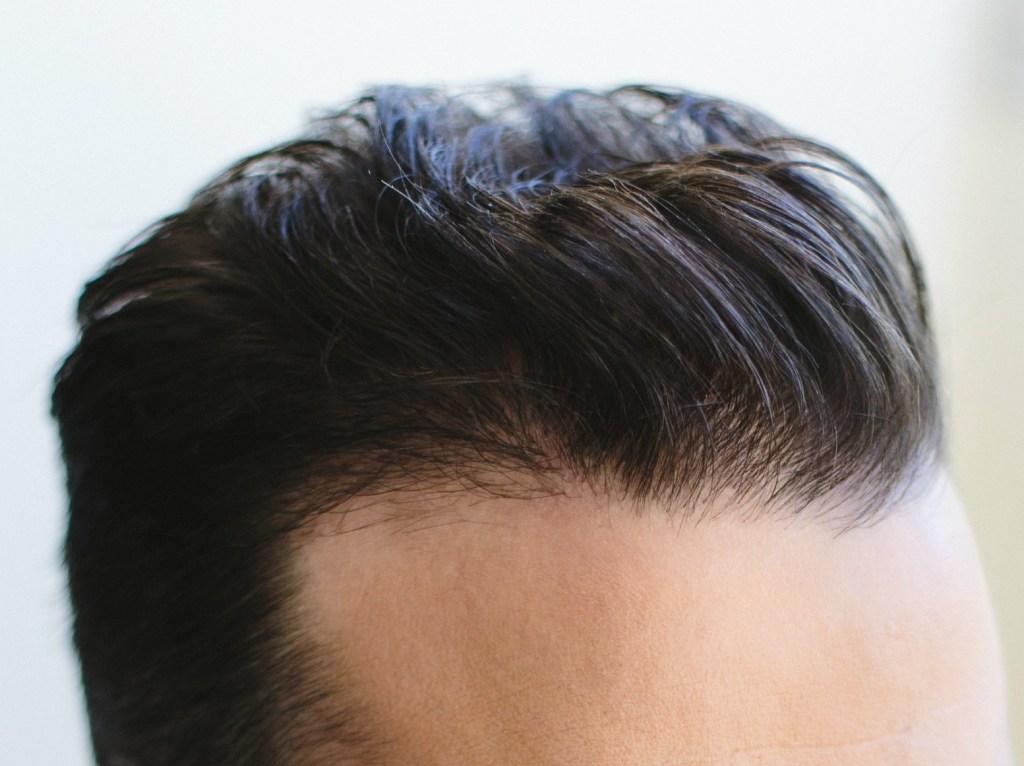 Dr Baubac Hair Transplant 23
