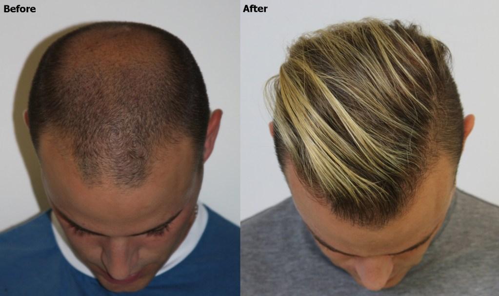 Dr Baubac Hair Transplant 26