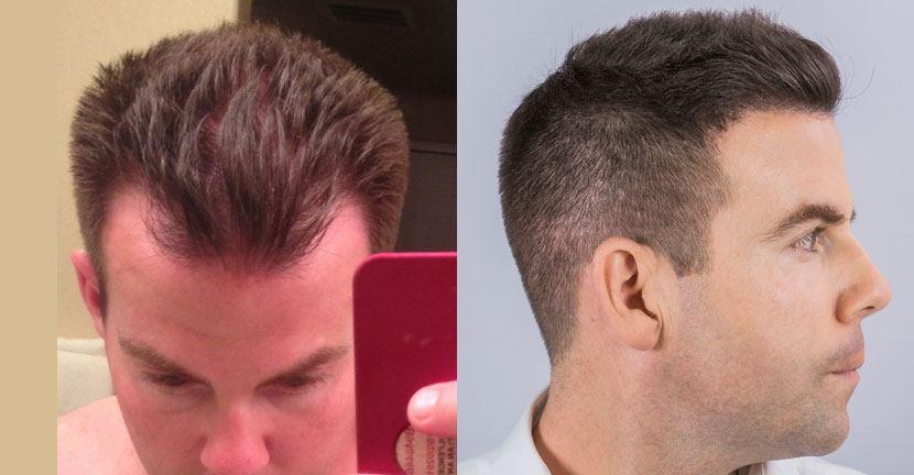 Dr Baubac Hair Transplant Results 12