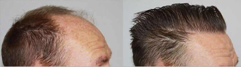 Dr Baubac Hair Transplant Results 14