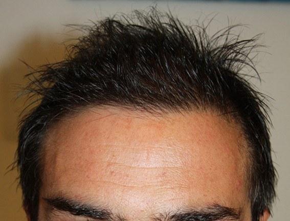 Dr Baubac Hair Transplant Results 16