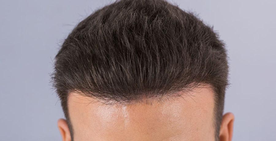 Dr Baubac Hair Transplant Results 3