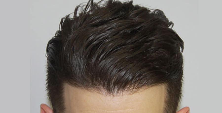 Dr Baubac Hair Transplant Results 4