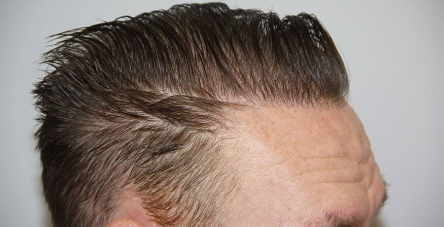 Dr Baubac Hair Transplant Results 7