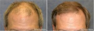 Dr Bernstein Hair Transplant Reviews New York