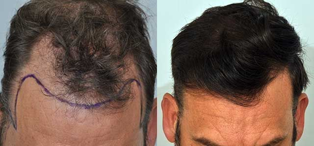 Dr Cole Hair Transplant Result 10
