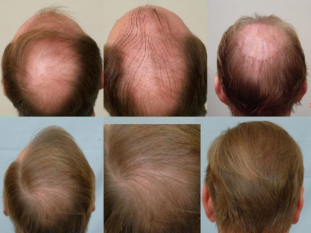 Dr Cole Hair Transplant Result 15