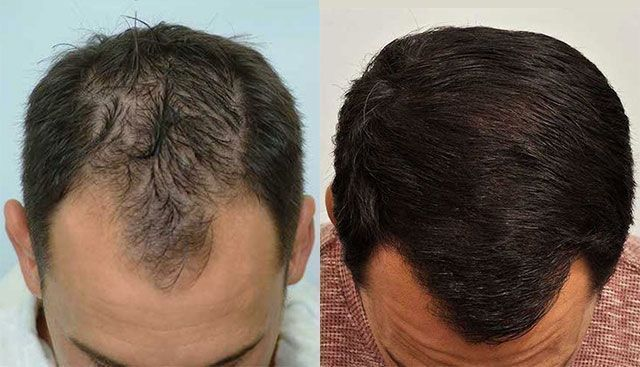 Dr Cole Hair Transplant Result 21