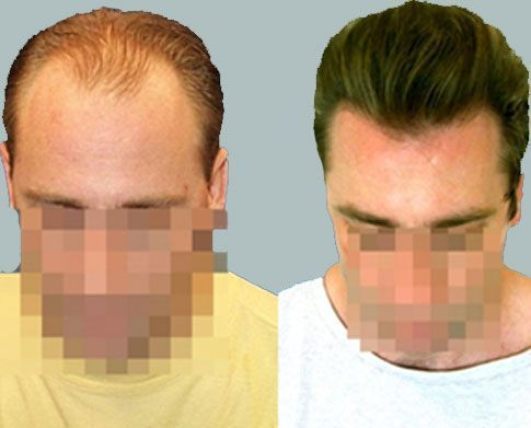 Dr Cole Hair Transplant Result 25