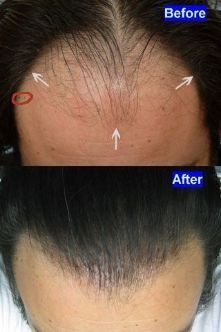 Dr Cole Hair Transplant Result 28