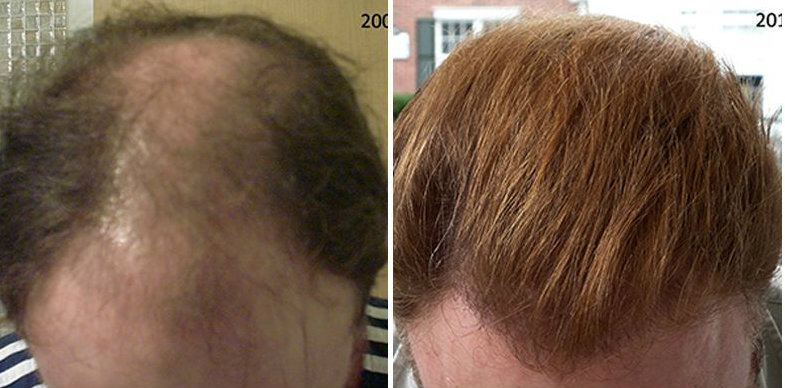 Dr Cole Hair Transplant Result 34