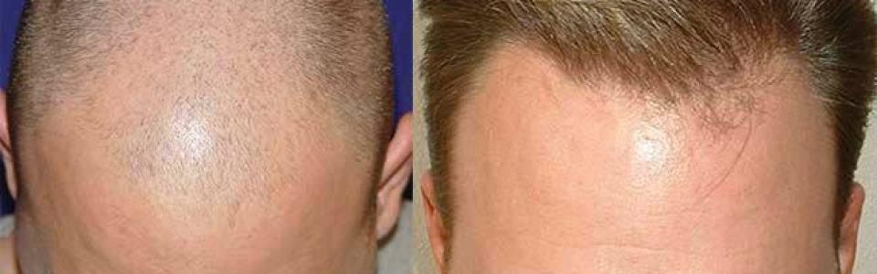 dr cole hair transplant review photos atlanta
