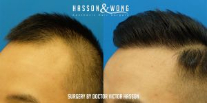 Dr. Hasson FUE 2274 grafts
