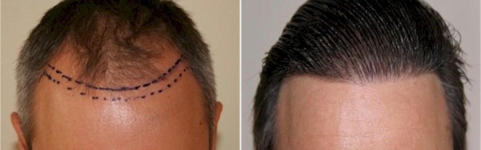 dr keser hair transplant ankara