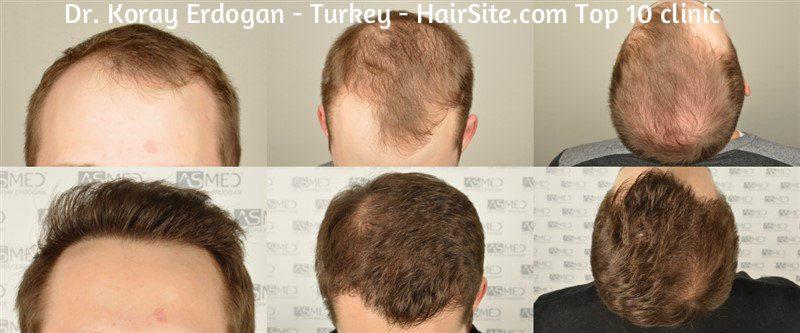 dr koray erdogan hair transplant reviews turkey