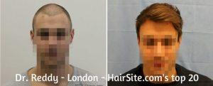 dr reddy hair transplant reviews london