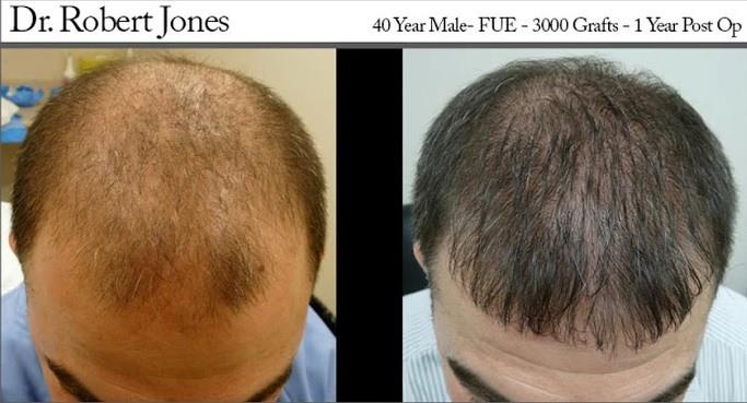 dr robert jones hair transplant reviews toronto