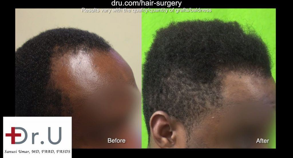 dr umar hair transplant reviews los angeles