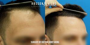 Dr. Wong FUE 1763 grafts
