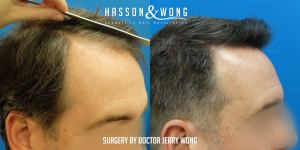 Dr. Wong FUE 1862 grafts