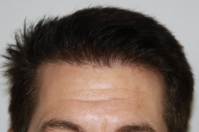 Hair Transplant Patient 74 After