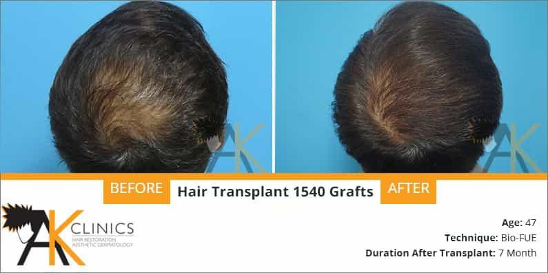 hair-transplant-result-23