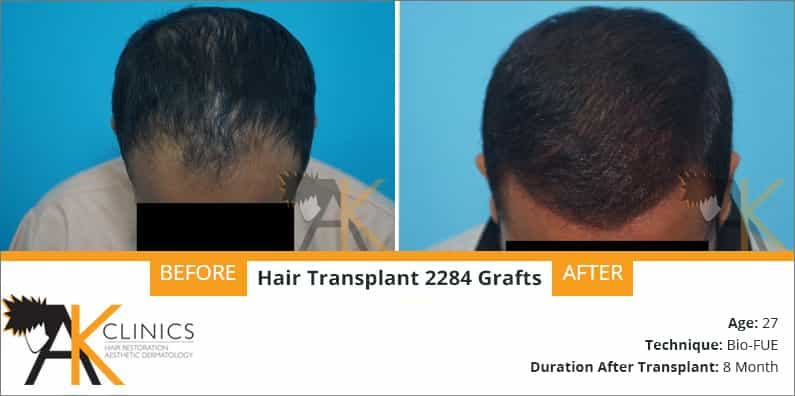hair-transplant-result-24