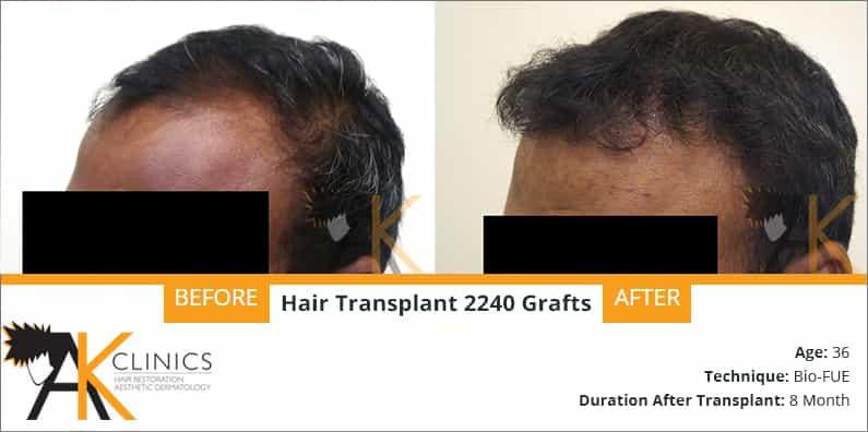 hair-transplant-result-25