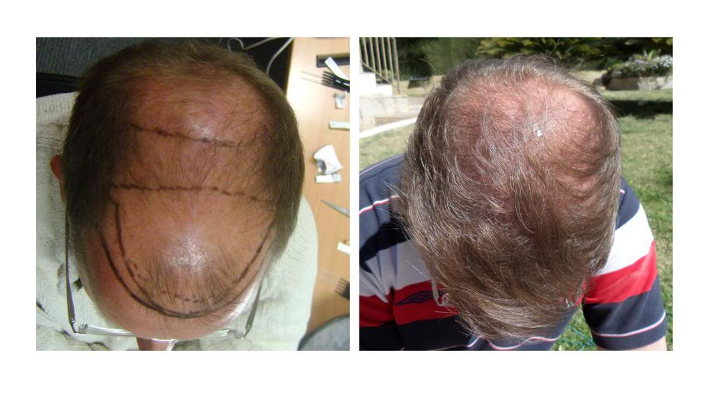 hdc hair transplant reviews cyprus