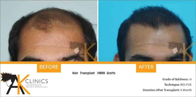 india-bio-fue-hair-transplant-result-14