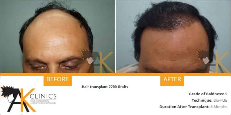 india-bio-fue-hair-transplant-result-5