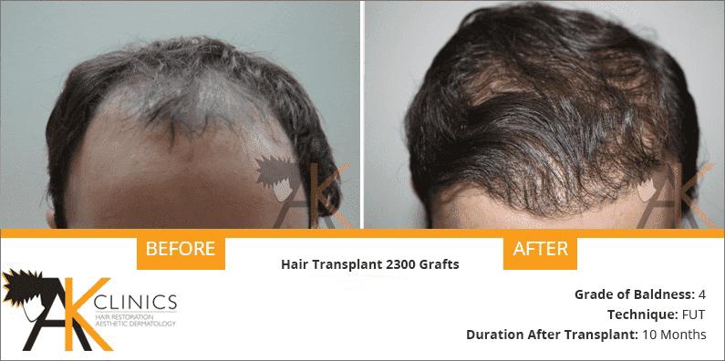 india-fut-strip-hair-transplant-result-6